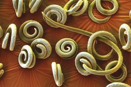 Włosień kręty - Trichinella spiralis zdjęcie: www.photoblog.pl